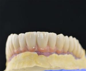 Protésicos dentales en A Coruña