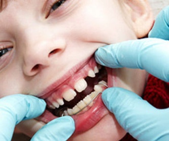 Implantología bucal: Tratamientos de Clínica Dents