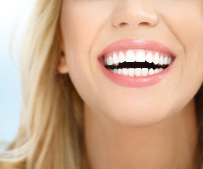 Blanqueamientos dentales: Servicios de Clínica Dental Santiago G. Fdez. - Nespral