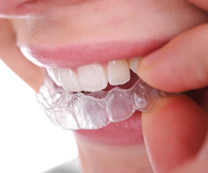 Invisalign: Tratamientos de Max Dental