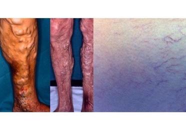 Arañas vasculares. Varices y sus complicaciones.