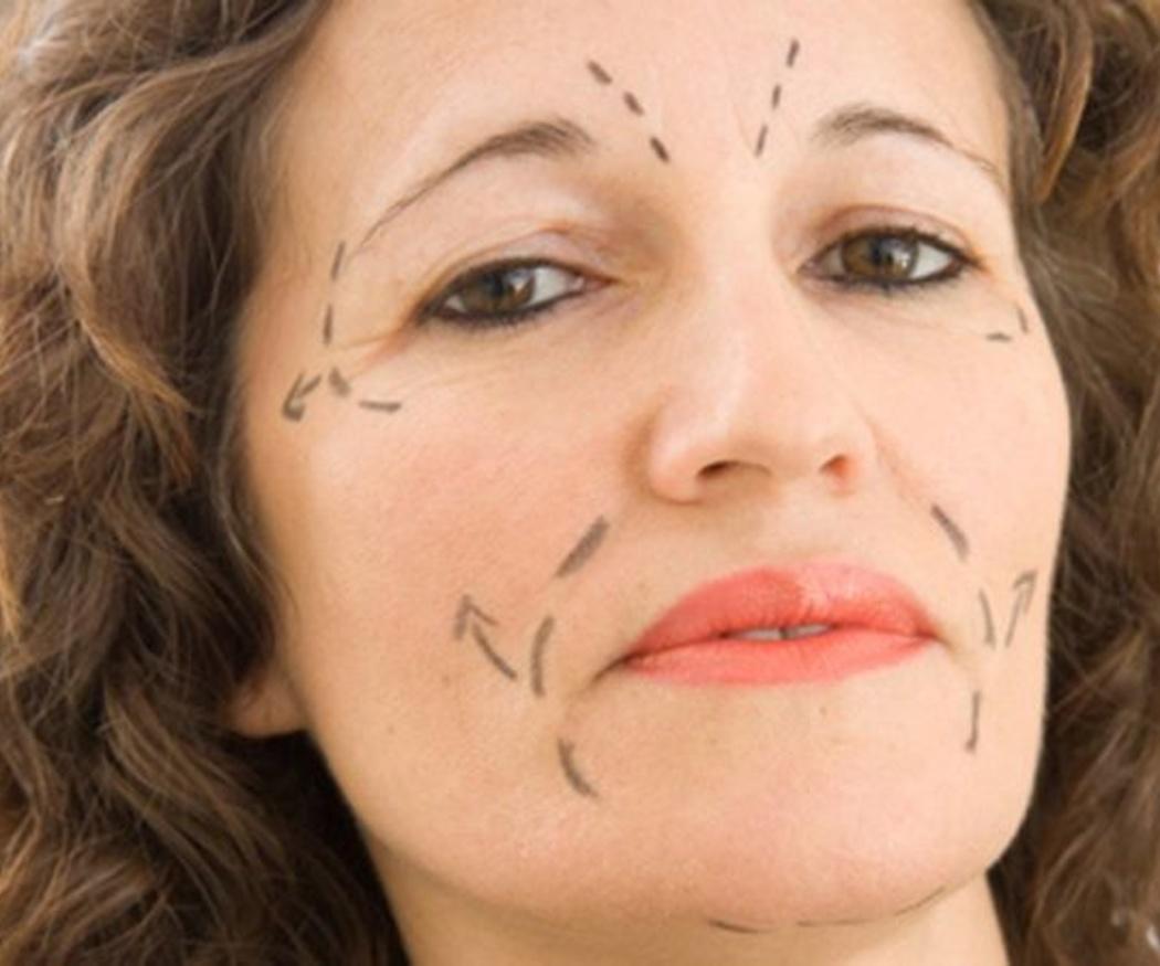 Ventajas de la cirugía estética