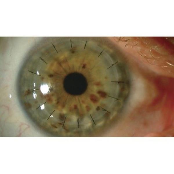 Tratamientos de enfermedades de la cornea. Qureatocono: Catálogo de Centro Médico  Oftalmológico Milenium