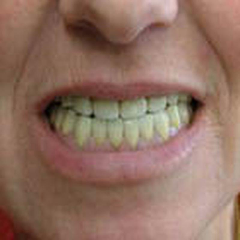 Prótesis dental: Servicios de Clínica Implanteoral Milladoiro