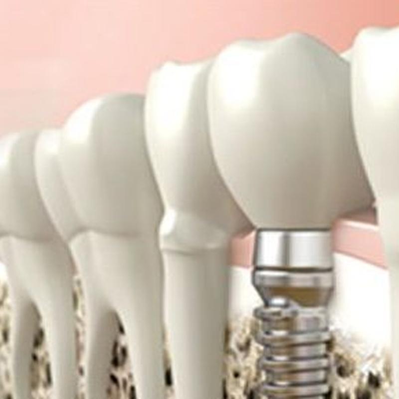 Implantología: Tratamientos de Moncloa Clínica Dental