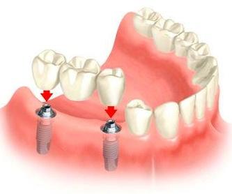 Prótesis dentales: Tratamientos de Maite Pérez Corrales