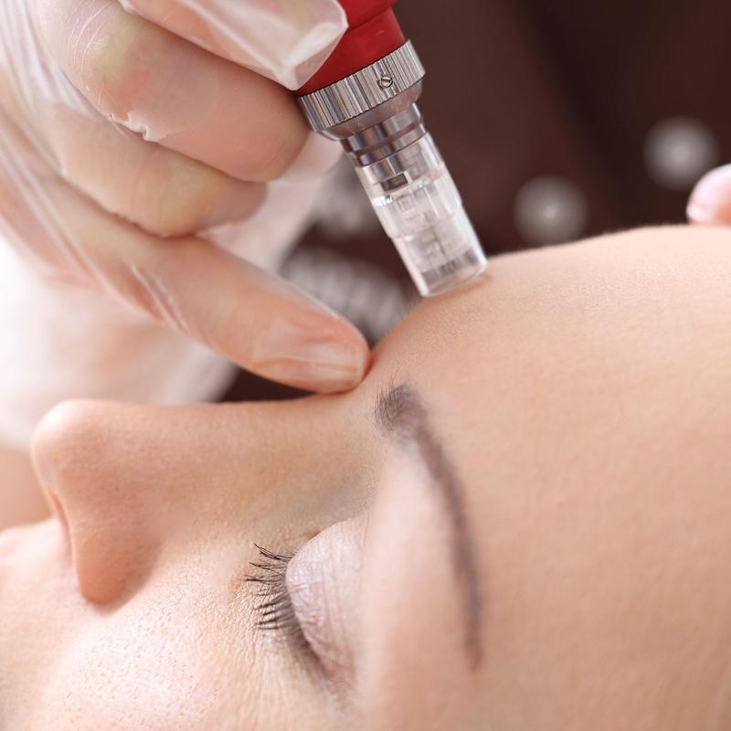 Micropunción: Dermatología y Dermoestética de Dermatología Socorro Fierro