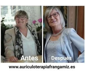 Antes y después del 30 kilos adelgazados con mi terapia ,Auriculoterapia y dieta sana