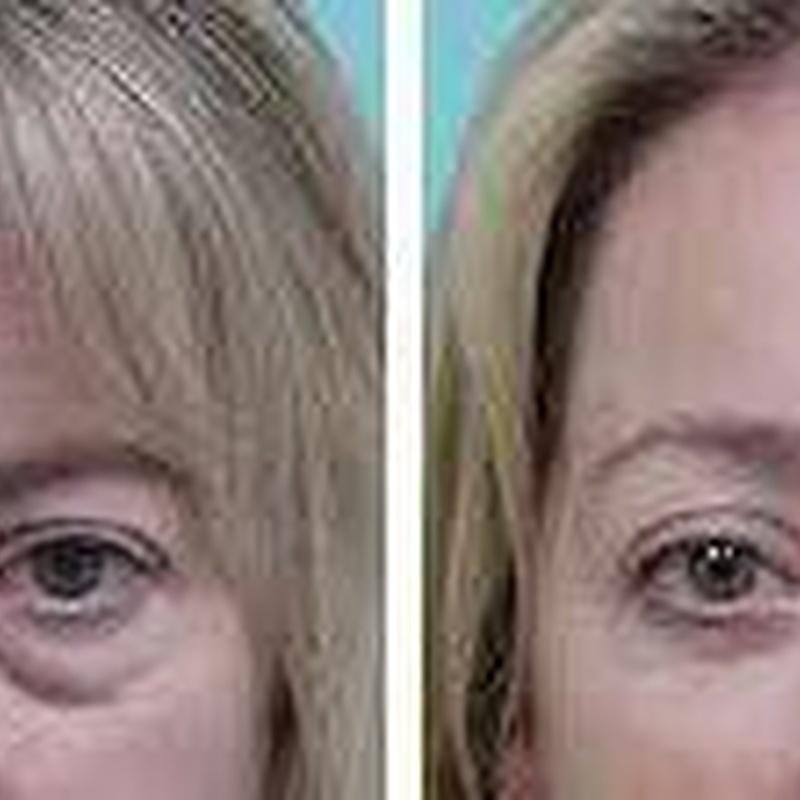 Blefarolaser y Botox en el tercio superior