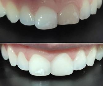 Blanqueamiento dental domiciliario: Servicios de Clínica dental ulident