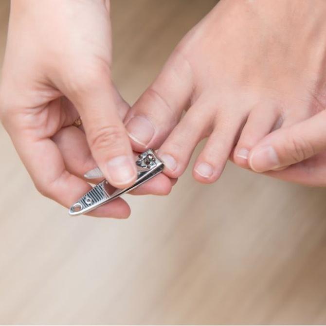 ¿Qué hacer con las uñas encarnadas?