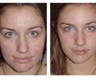 Tratamiento anti-acne con dermapen