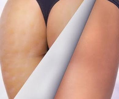 Ayuda a mejorar la celulitis, aportando firmeza a la piel.