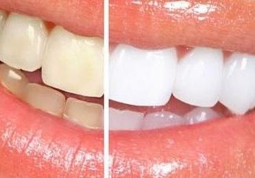 Estétíca dental