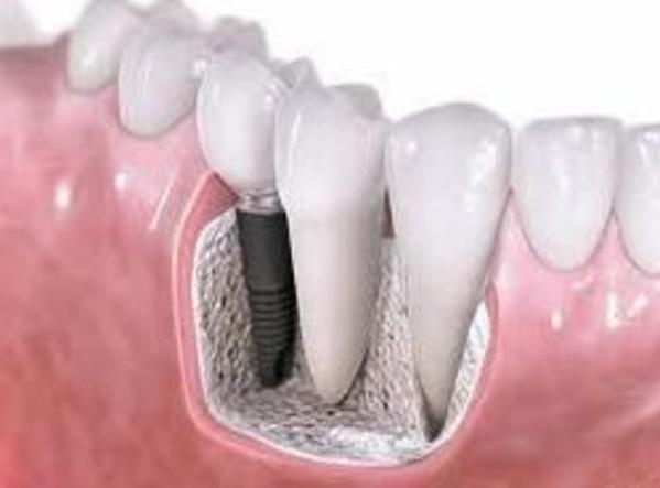 Clínica Dental Herpaden, una de esas clínicas para implantes dentales en Ávila