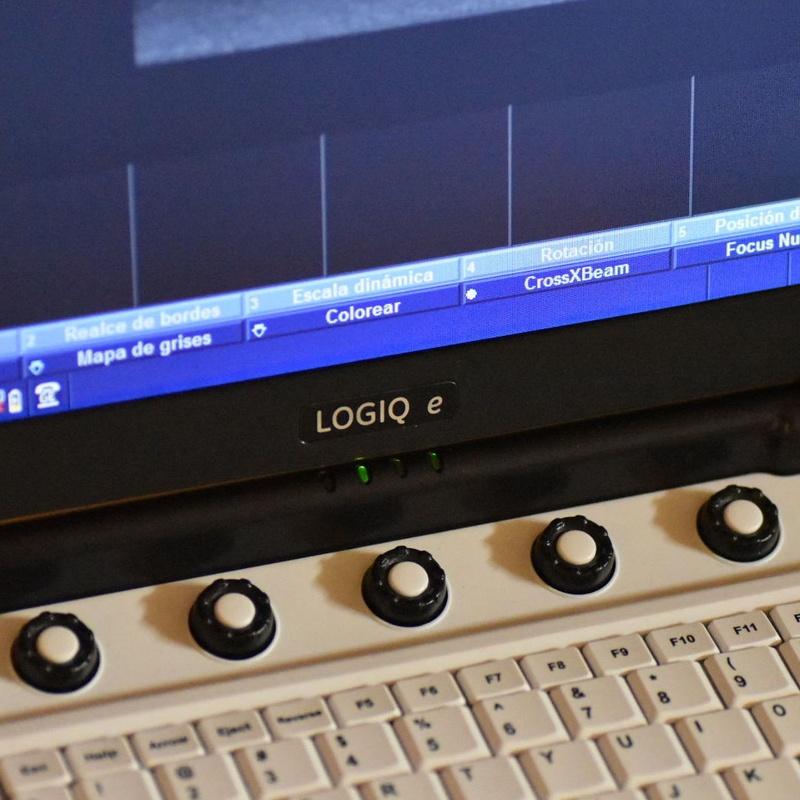 Eco-Doppler GE LOGIQ e