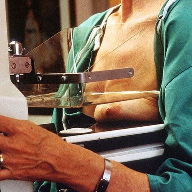 La importancia de la mamografía en la detección precoz del cáncer de mama
