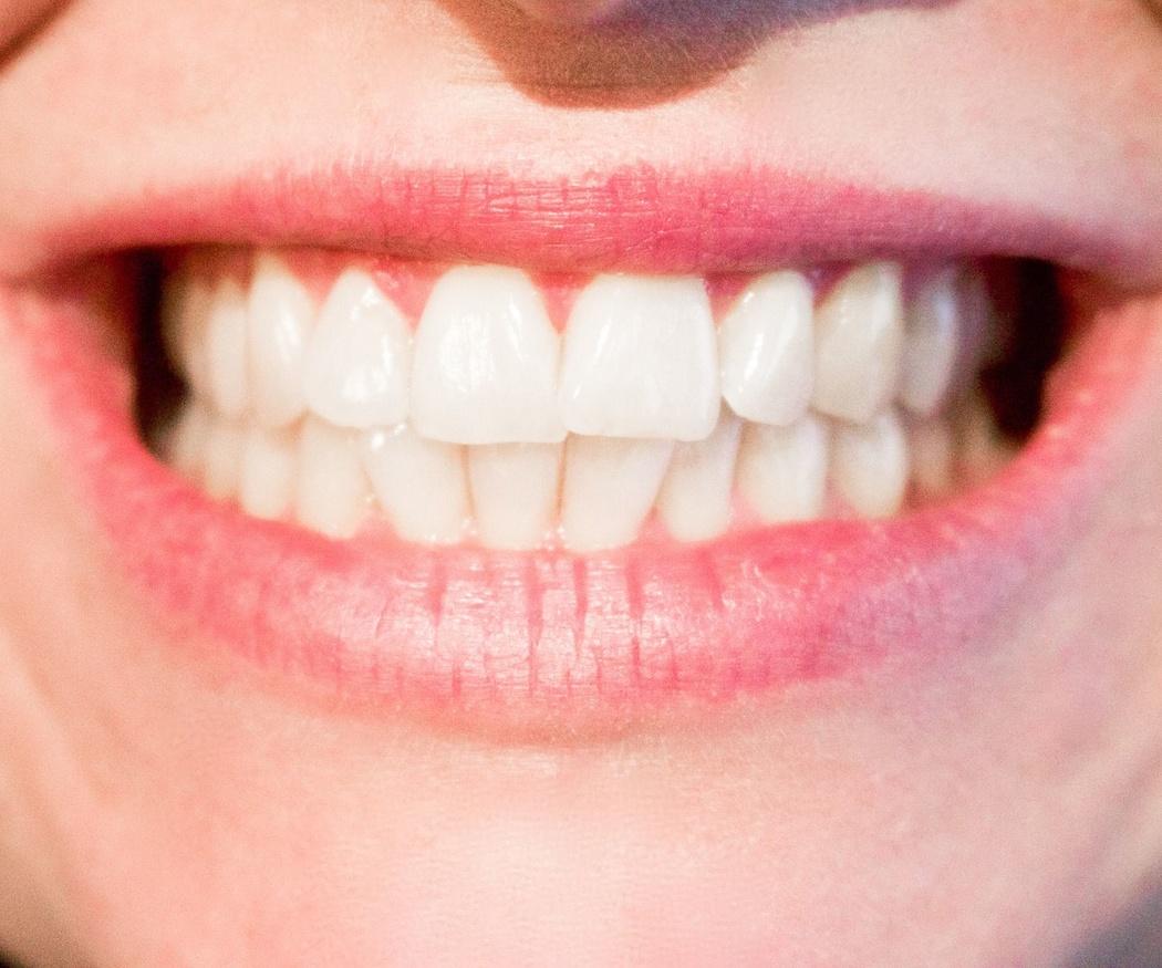 Recupera el brillo de tu sonrisa con un blanqueamiento dental