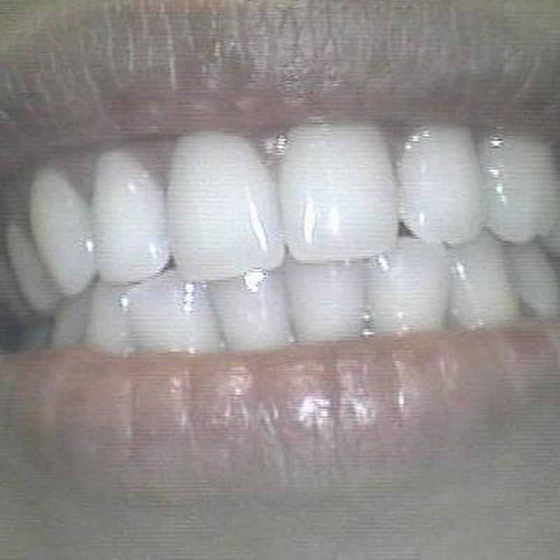 ESPECIALISTAS EN ESTÉTICA DENTAL: Servicios  de Clínica Dental San Lorenzo