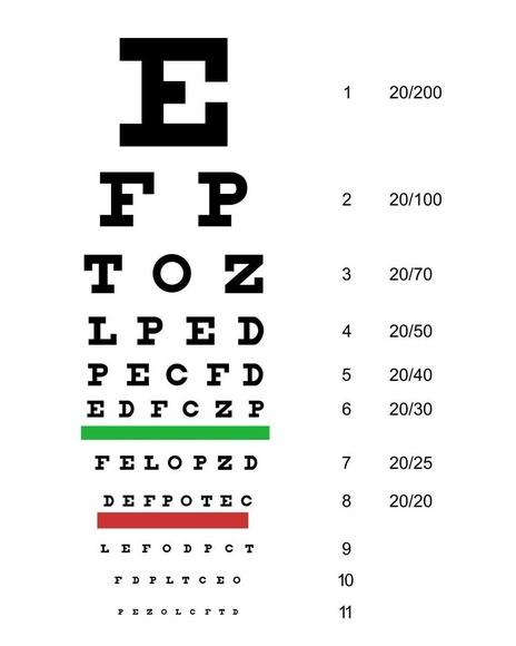 Optometría: Catálogo de Centro Óptico Romero