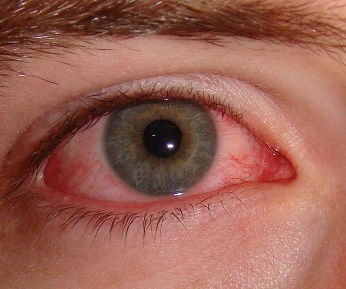 Cómo aliviar los sintomas de la alergia estacional