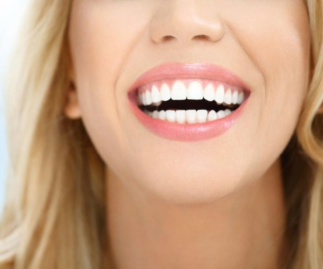 Blanqueamiento dental versus limpieza dental