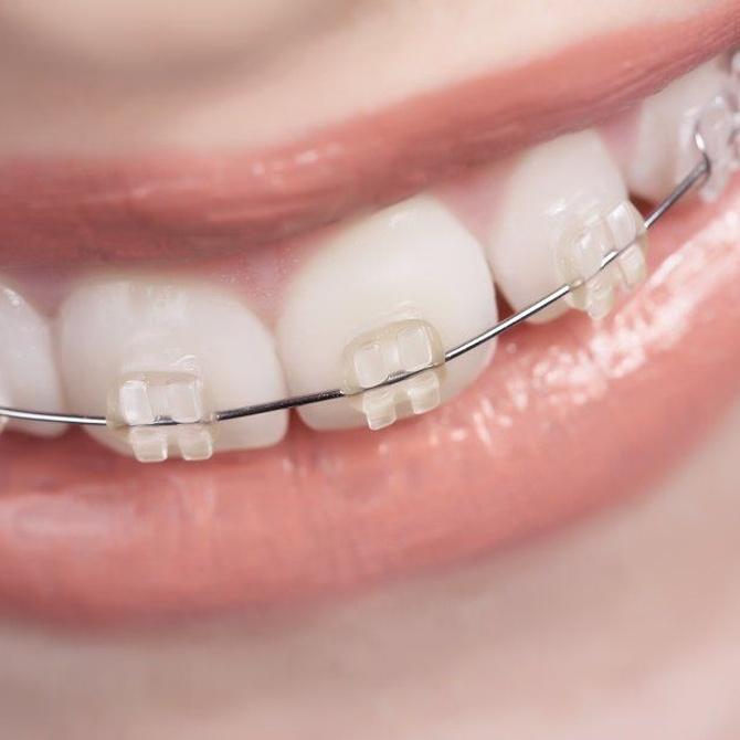 La ortodoncia ya no se ve