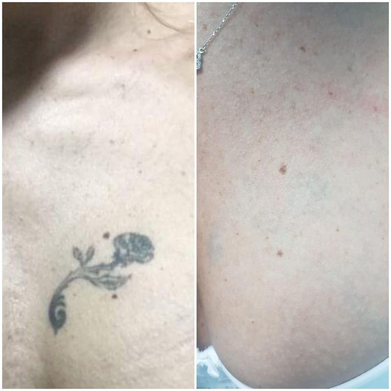 Eliminación de tatuajes: Servicios de Patri Calderón Estetic