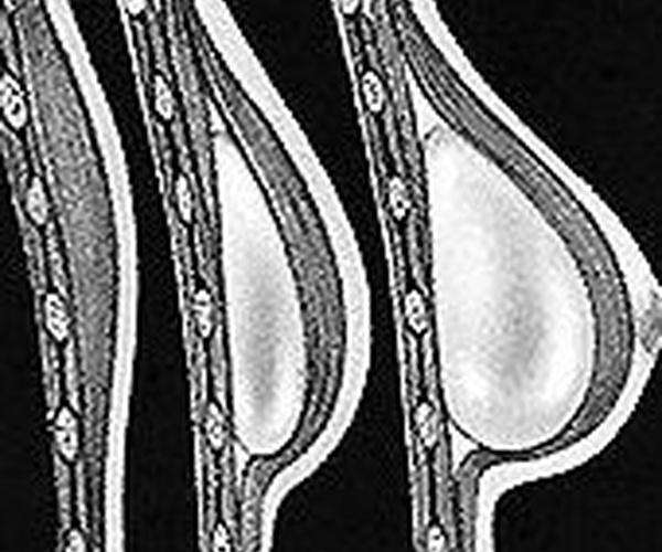 Cirugia de elevación de pecho