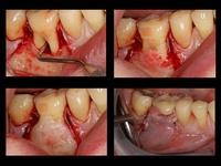 Regeneración de un defecto óseo periodontal