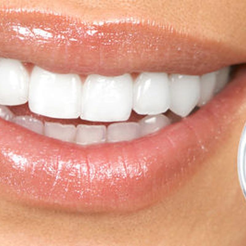 Periodoncia dental: Servicios de MAG Clínica Estético Dental