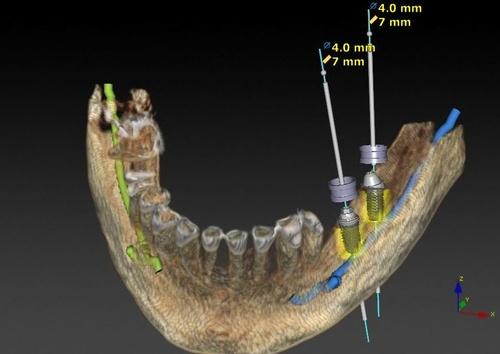 Implantología Guiada 3D
