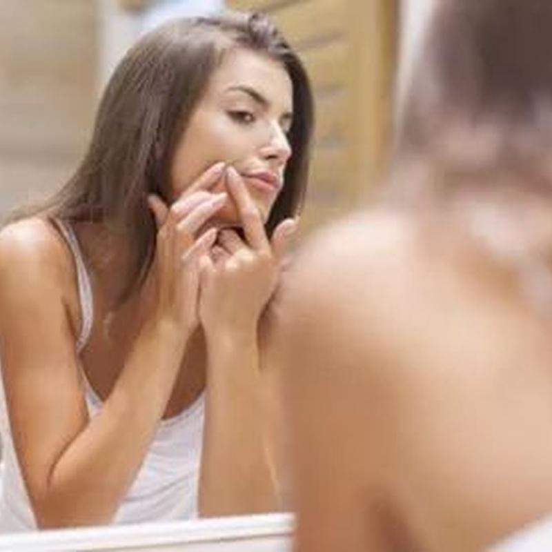 Tratamiento del acné: Tratamientos de Medicina Estética Profesional