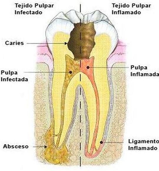 Endodoncia: Tratamientos de Clínica dental Vall Hebrón