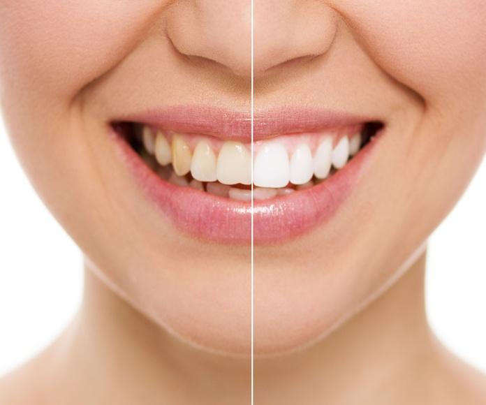 Blaqueamientos: Tratamientos de Clínica Dental López Olivas