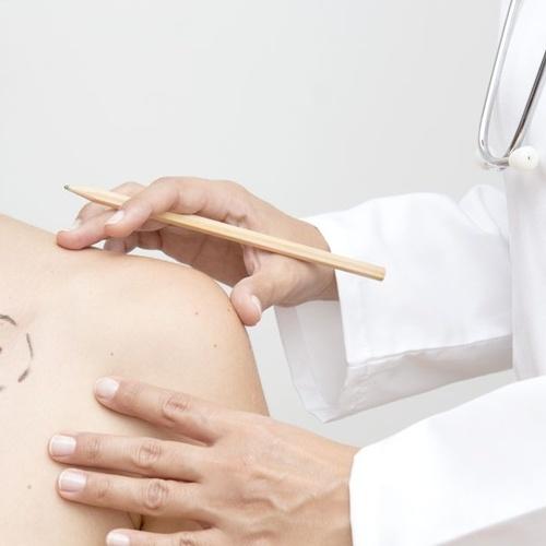 Prevención de enfermedades de la piel en Madrid