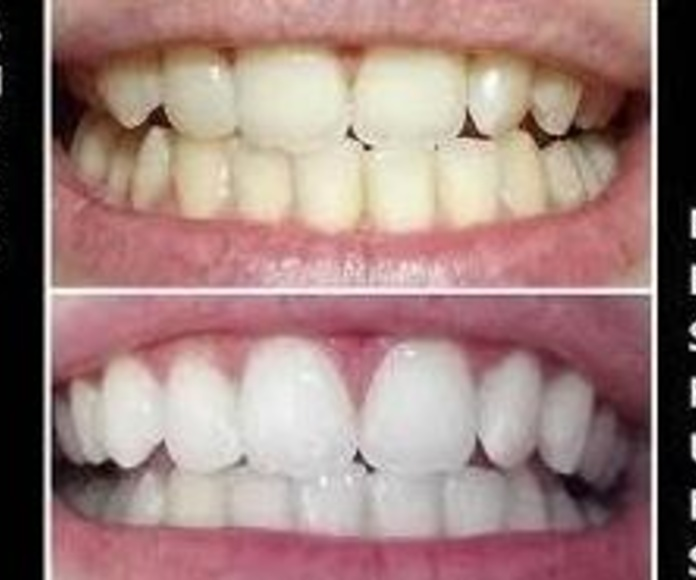 BLANQUEAMIENTO AMBULATORIO: Servicios de Clínica Dental Dra. Belkys Hernández Cabrera