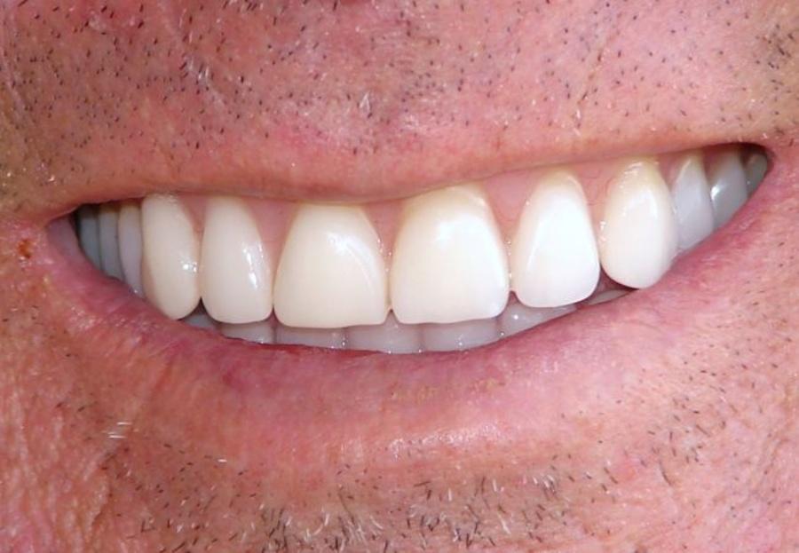 La microestructura del esmalte dental