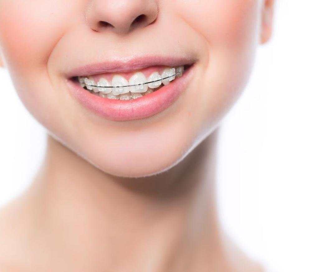 La importancia de usar retenedores de ortodoncia