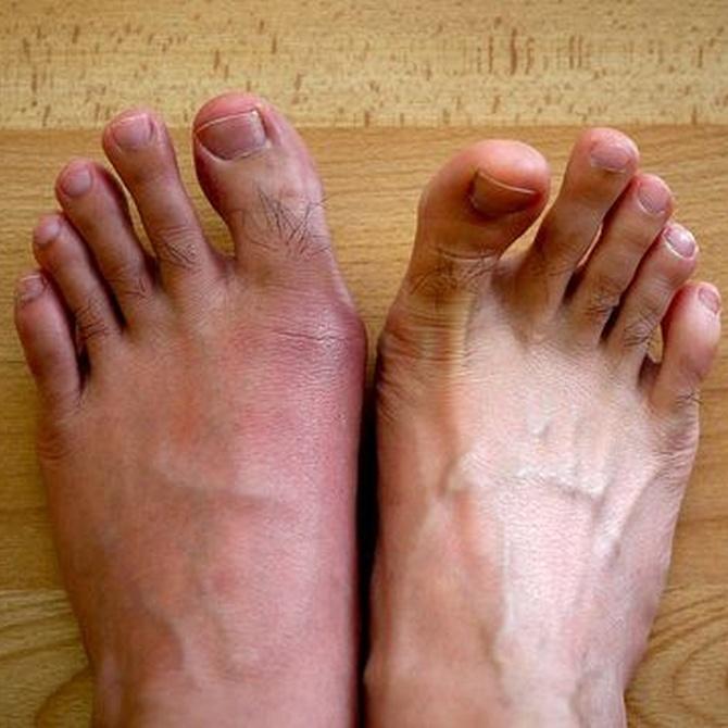 Otras formas de artritis: la gota (II)