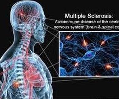 Ensayan un medicamento contra la esclerosis multiple