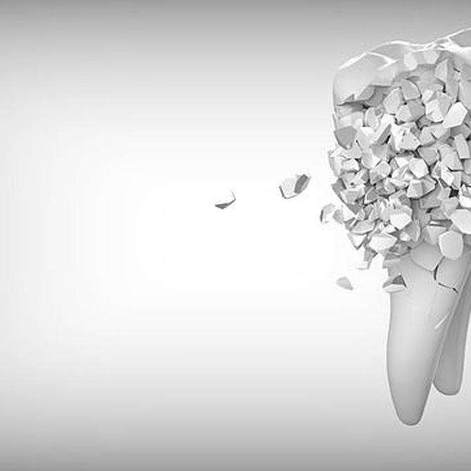 La regeneración ósea y sus métodos