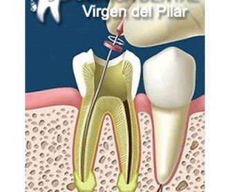 Implantes dentales: Tratamientos de Clínica Dental Virgen del Pilar