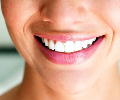 Dentista en Cádiz implantes