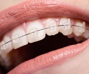 Ortodoncia dental en Mataró