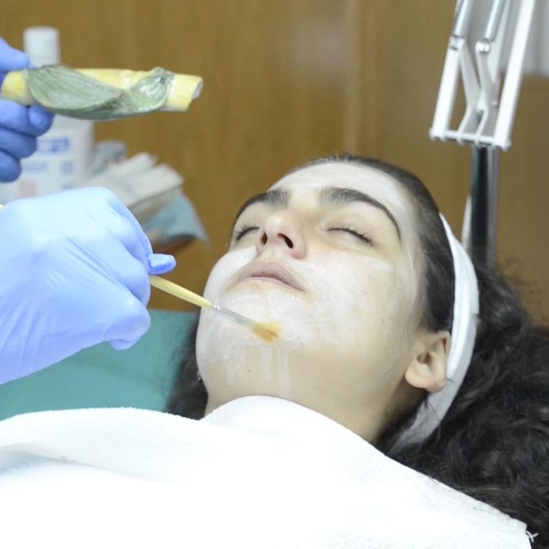 Peeling Médico