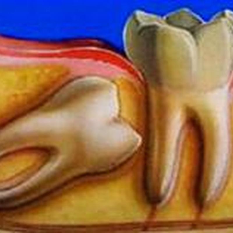 Cirugía oral: Tratamientos de Hospident Clínica Dental
