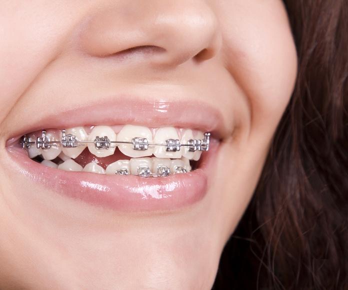 Ortodoncia: Tratamientos de CDA Clínica Dental