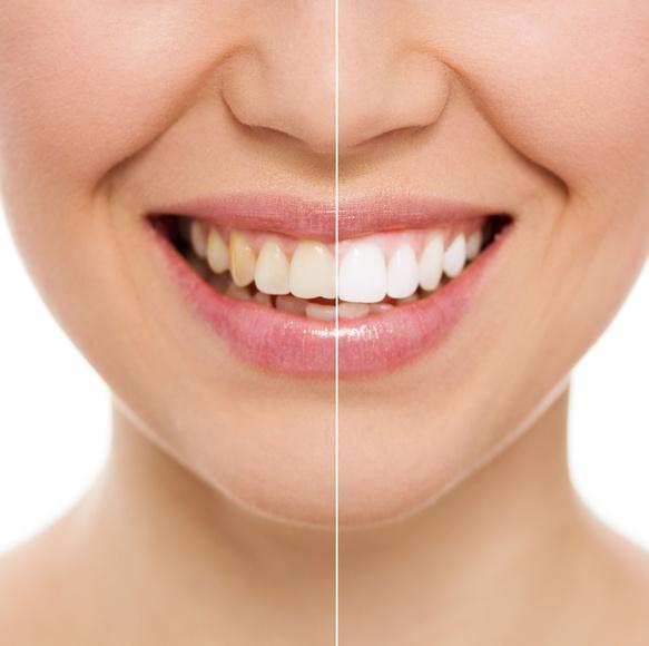 Blanqueamiento dental: Tratamientos de Centro Dental Ortodoncia Dra. López