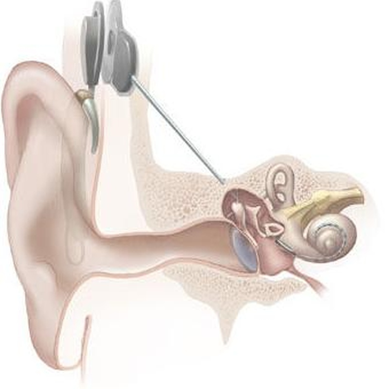 Reparación audífonos: Servicios de Centro Auditivo Oe